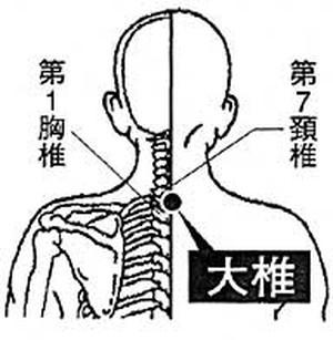 後頭神経痛(後ろの頭の表面が痛い)